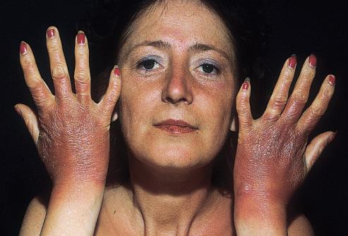 photosensitivity symptoms #10