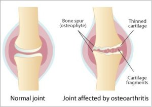 Causes-and-Symptoms-of-Osteoarthritis