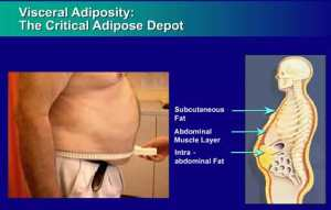 abdominalobesity
