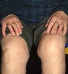osteoarthritis-276x300