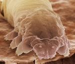 eye-lash-mite-large
