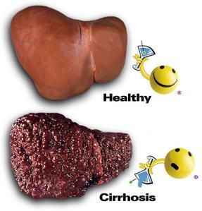 cirrhosis1